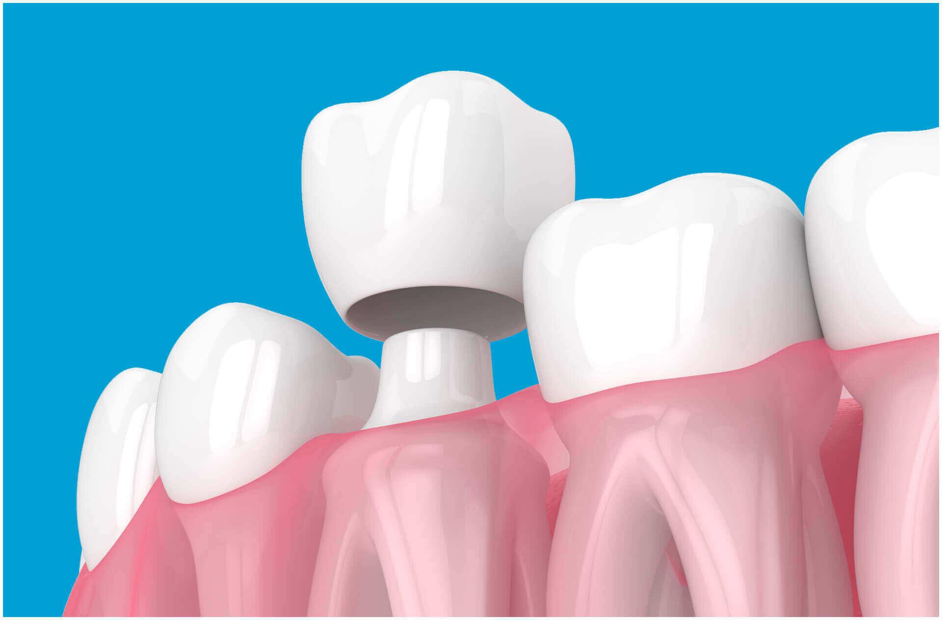 A fogászati korona