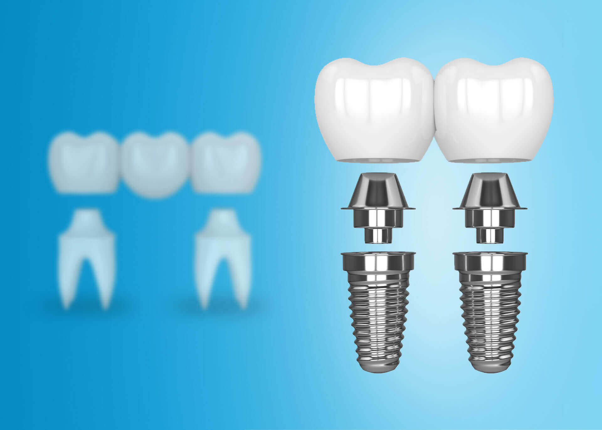 Fogászati implantátumok és fogászati hidak