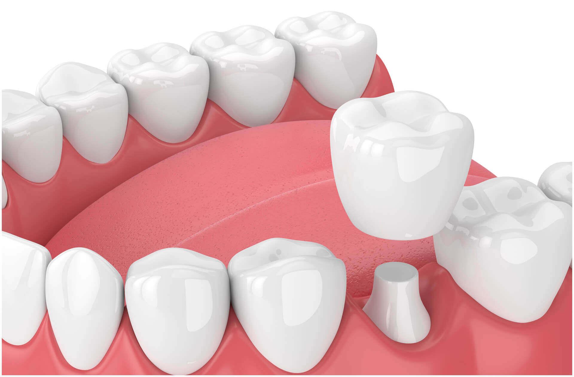 Hogy néz ki a fogászati korona?